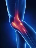 التشخيص الطبي لطقطقة الركبة