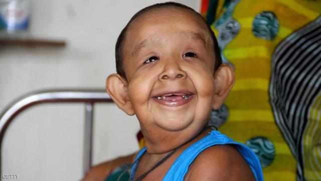 In this photograph taken on August 7, 2016,  four-year-old Bangladeshi child Bayezid Shikdar sits on a bed at Dhaka Medical College Hospital in Dhaka. A four-year-old Bangladeshi boy suffering from a mysterious illness that makes him look like an old man has been admitted to hospital for tests, doctors and his family said. Doctors at a top hospital in Dhaka have agreed to try to diagnose and treat Bayezid Shikdar, who comes from a poor farming family, for free after learning of his plight on the weekend. / AFP / STR        (Photo credit should read STR/AFP/Getty Images)
