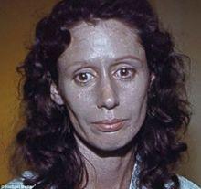 بالصور.. بسبب قطرة أنف: امرأة تتحول إلى اللون الفضي للأبد