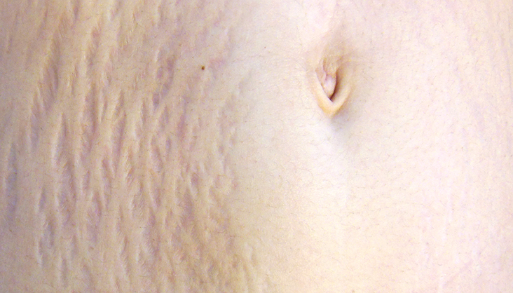 Stretch Marks on The Stomach Following Pregnancy