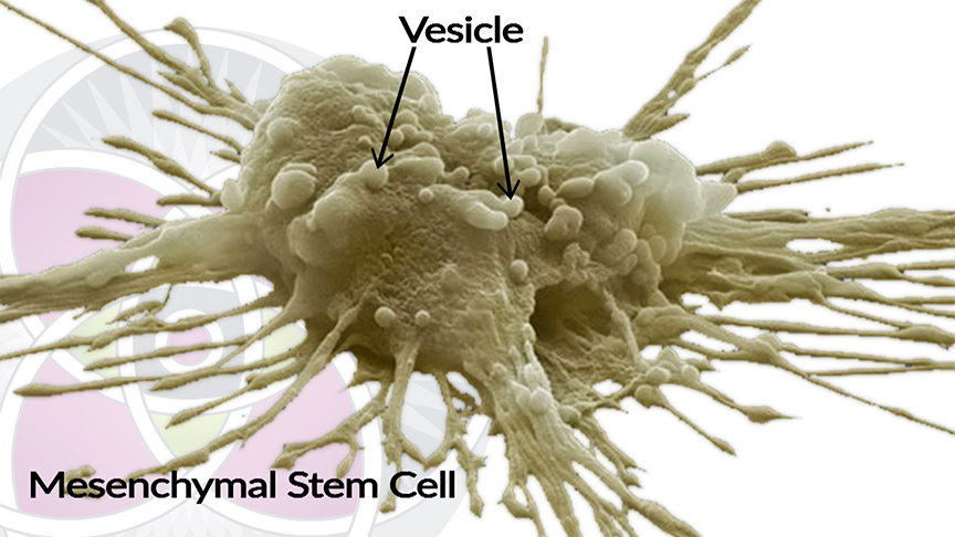 Mesenchymal Stem Cells are Extracted out of Umbilical Cords