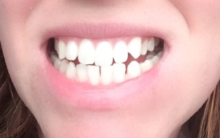 Smile - After using Waterpik
