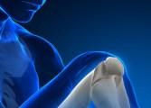 La Fundación Internacional de Osteoporosis pide no subestimar los peligros del padecimiento