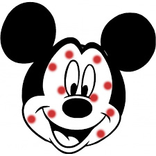 Mickey with measles