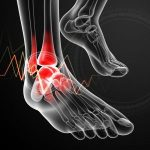5 Different Types of Arthritis That Affect Your Feet