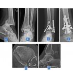 Australian Football Leaguer Wallis Suffers Nasty Ankle Fracture