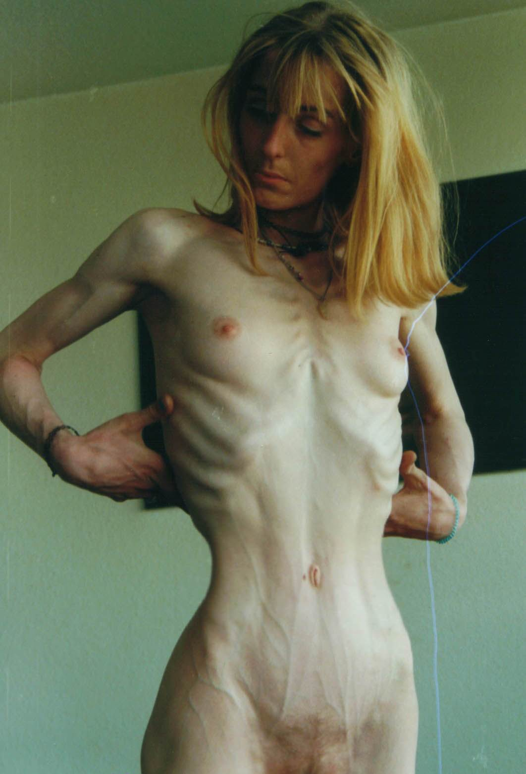 from Robert pictures of naked anorexic women