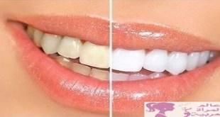 تبيض الاسنان
