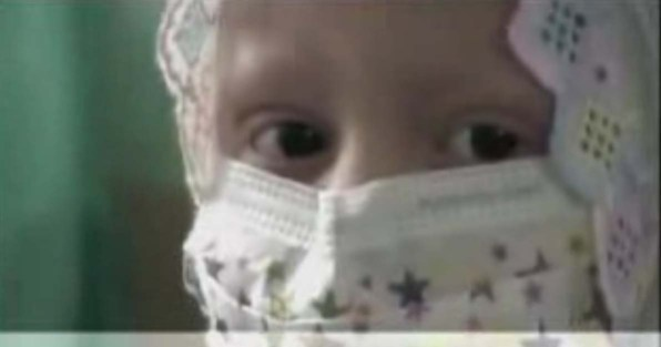 child cancer patient - staring eyes
