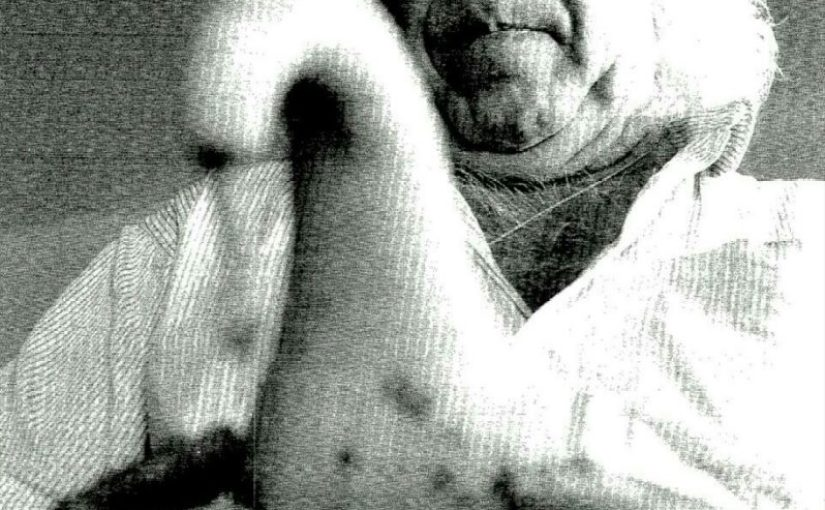 Juan Lemes (El Timple de Calabaza) 1° parte