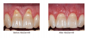 Gum Surgery For Receding Gums Without Using The Palate
