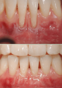 Having Thin Gums Can Cause A Receding Gum Line