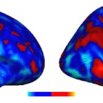 Brain patterns present how an autistic individual may function