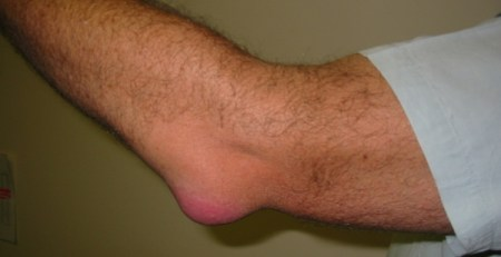 Causes of Bursitis