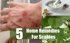 5 Best Home Remedies For Scabies