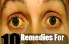 10 Simple Home Remedies For Jaundice