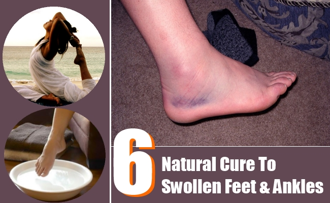 Natural Cure To Swollen Feet And Ankles