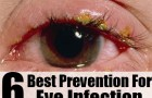 6 Best Prevention For Eye Infection