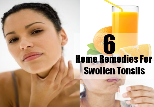 Home Remedies For Swollen Tonsils