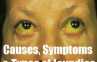 Various Causes, Symptoms And Types of Jaundice