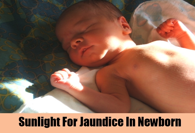 Sunlight For Jaundice In Newborn