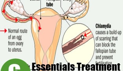 Essentials Treatments For Chlamydia