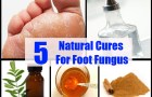 5 Natural Cures For Foot Fungus