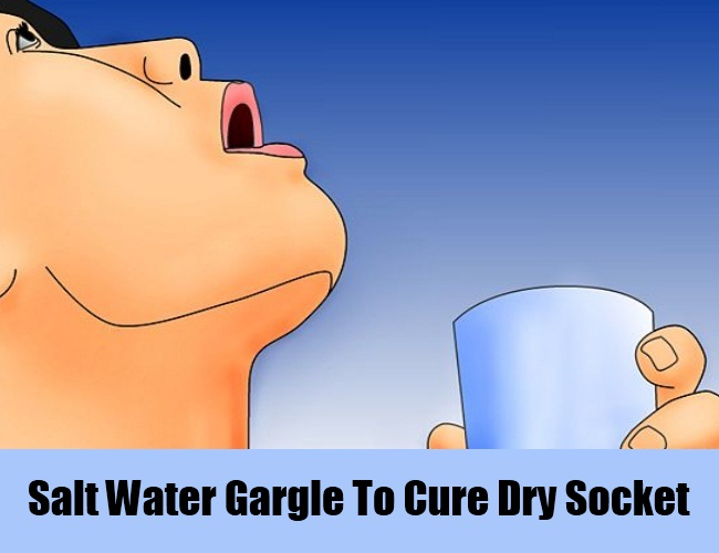Salt Water Gargle To Cure Dry Socket