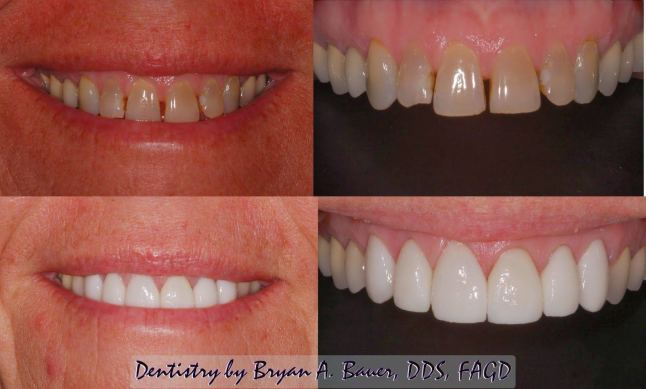 cosmetic dentistry wheaton