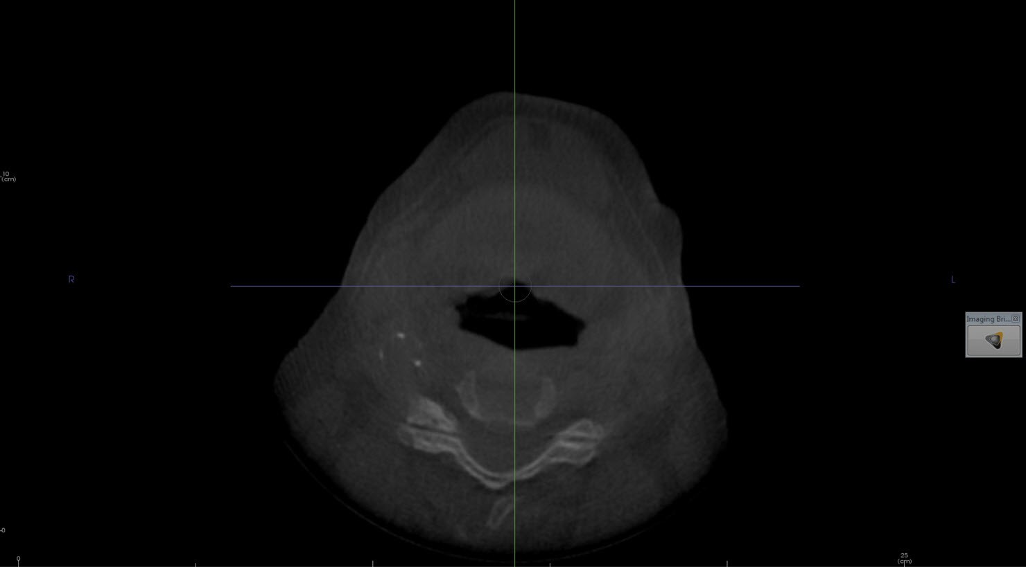 Calcified carotid atheroma (calcified carotid artery plaque) AND aortic arch calcification
