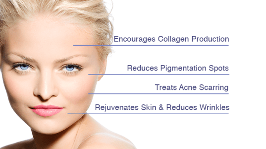 Put up the good fight against aging! With this minimally invasive procedure we can produce collagen production, reduce the apperance of fine lines and wrinkles, minimize pore size and scaring and tighten the skin. Also, works well on stretch marks.