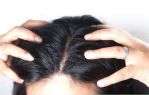scalp-1-300x189