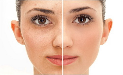 Best tips to prevent facial wrinkles