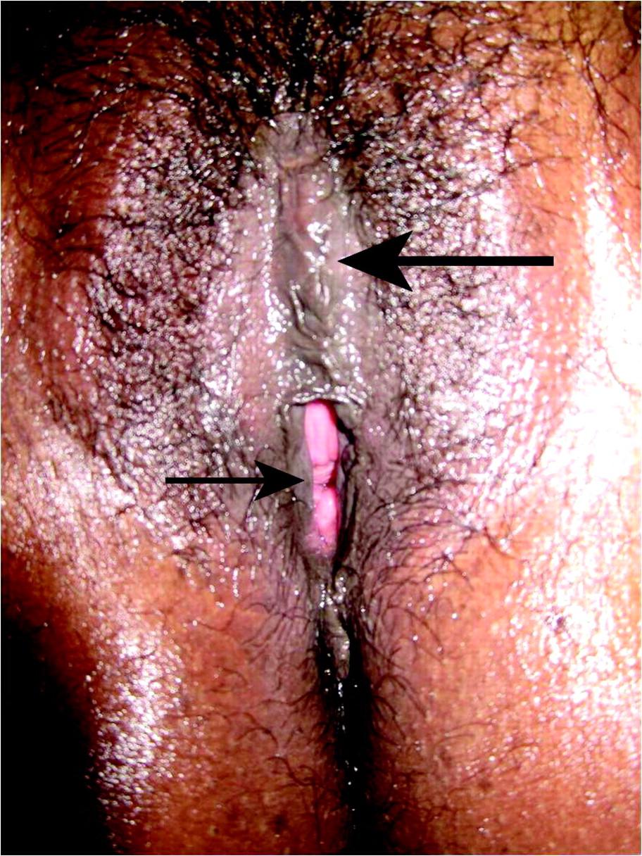 female doctor circumcision