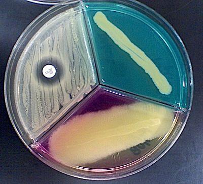 prettybacteria.jpg