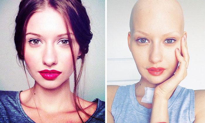 modelo-embarazada-cancer-huesos-elizaveta-bulokhova (8)