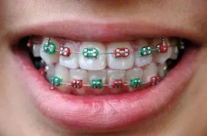 Fake Braces for Teeth