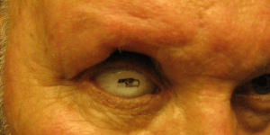 Perfectly Reasonable Man Has a Seattle Seahawks Logo on His Prosthetic Eye