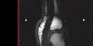 First Ever MRI Footage Of Knuckles Being Cracked Is Grade-A Disgusting
