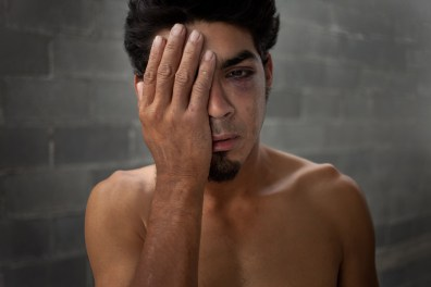 Avelo Pinada, 28, of Honduras, shows where he was beaten by a group of armed men and left for dead in Matamoros, Mexico. Organized crime has made crossing even more dangerous in recent years.