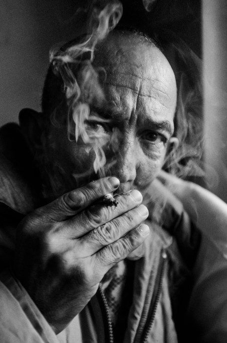 Chain smoker patient