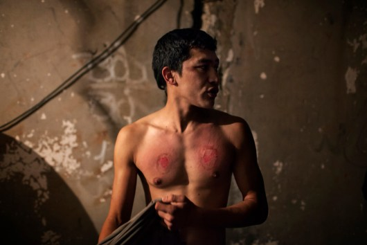 2013 Patras, Grecce. Mahdi Mohseni, 17, wears his chest after he mourns for the Day of Ashura. He has slashed his chest with chains with knives and his chest has open scars now. He won't go to the doctor though because he's an undocumented refugee that is trying to get to Italy. The Day of Ashura is being celebrated by a group of young Afghan men, most of whom are underaged. The men are in Patras, the port-city in Western Greece, in their attempt to escape to Italy, as there are daily boats to Italy from Patras. The Day of Ashura is on the tenth day of Muharram in the Islamic calendar and marks the climax of the Mourning of Muharram. It is commemorated by Shi'a Muslims as a day of mourning for the martyrdom of Husayn ibn Ali, the grandson of Muhammad at the Battle of Karbala on 10 Muharram in the year 61 AH. In some Shi'a regions of Muslim countries such as Afghanistan, Iran, Turkey, Azerbaijan, Iraq, Lebanon, Bahrain, and Pakistan, the Commemoration of Husayn ibn Ali has become a national holiday and most ethnic and religious communities participate in it