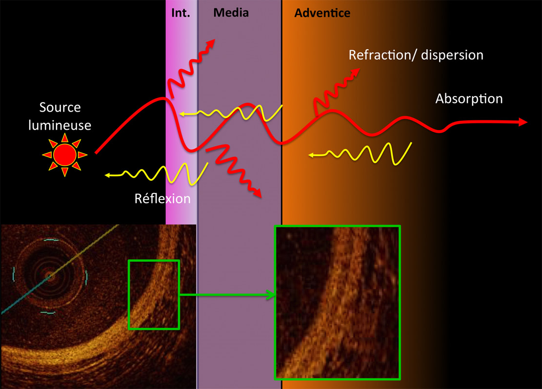 optical coherence tomography principles and applications pdf