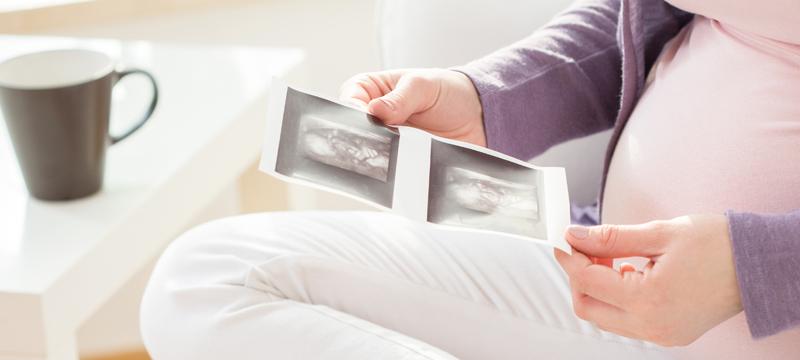 ultrasound_hg