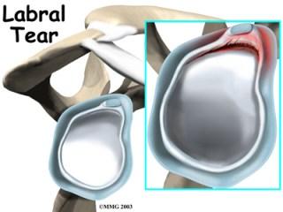 Labral-Injury