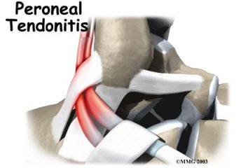 peroneal tendon problem