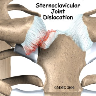 Sternoclavicular Joint Injury