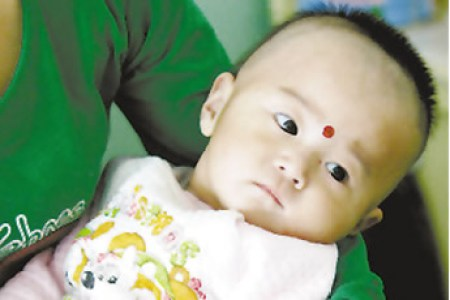 A Chinese baby with kidney stones caused by drinking cheap Sanlu baby forumla tainted with melamine.