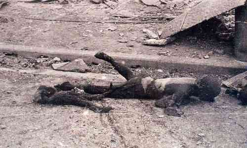 japanese-atomic-bomb-victims-43