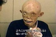 japanese-atomic-bomb-victims-46
